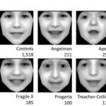 Deteksi Down Syndrome Pada Anak Bisa Lewat Ponsel