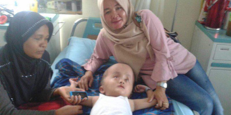 Bayi Zakaria Penderita Hydrocefalus di Pekanbaru Akan Dioperasi