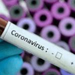 6 Cara Mencegah Terjangkit Virus Corona