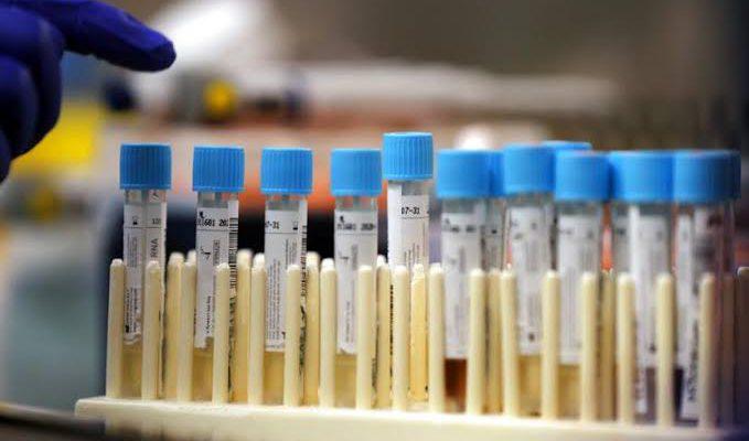 Jumlah Pemeriksaan PCR Laboratorium Biomolekular Arifin Achmad Menurun